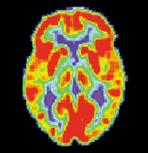PET_Normal_brain_US_dept_of-health_and_human_services-public domain